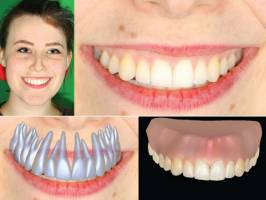 The new software reconstructs the dentition and the gum based on normal photos