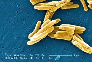 Researchers from the UZH discovered a multidrug-resistant Mycobacterium tubercul