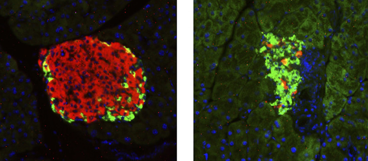On the left, a pancreatic islet of a healthy mouse (in red, cells producing insu