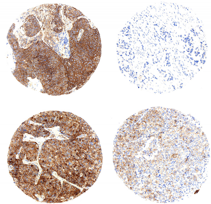 NgTMA  technology: Immunostaining of pGluN2B (Y1252), an indicator of NMDAR acti