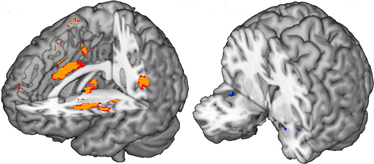 Part of the human brain contributing the most to the prediction of pain (left, o